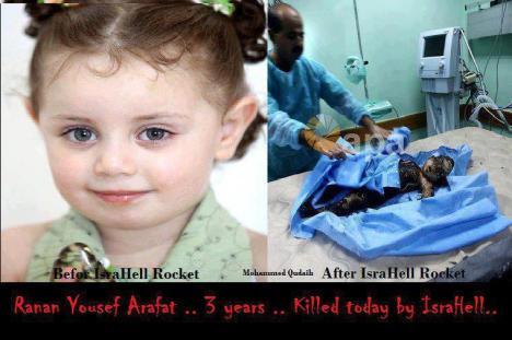 Anak Umur 3 Tahun Korban Kebiadaban Tentara Israel